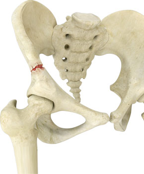 Avulsion Fractures of the Pelvis
